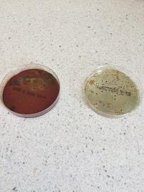 Bactérilait